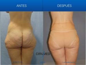 Dificil caso de liposucción una paciente con grandes depositos de grasa