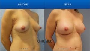 Aumento de mamas compuesto para un resultado más estético