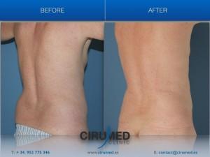 Zeltiq Coolsculpting, liposucción no quirúrgica