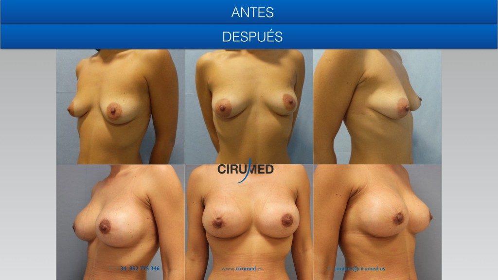 elevación de mamas con cicatriz minima combinando implante anatómico y lipotransferencia.