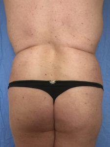 transformación cuerpo transexual