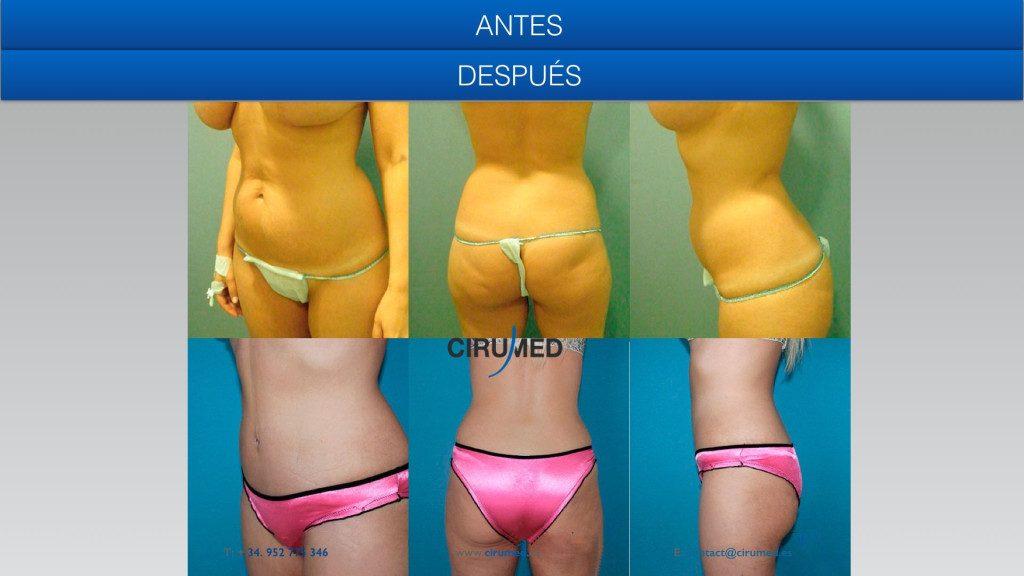 abdominoplastia con liposucción BodyJet
