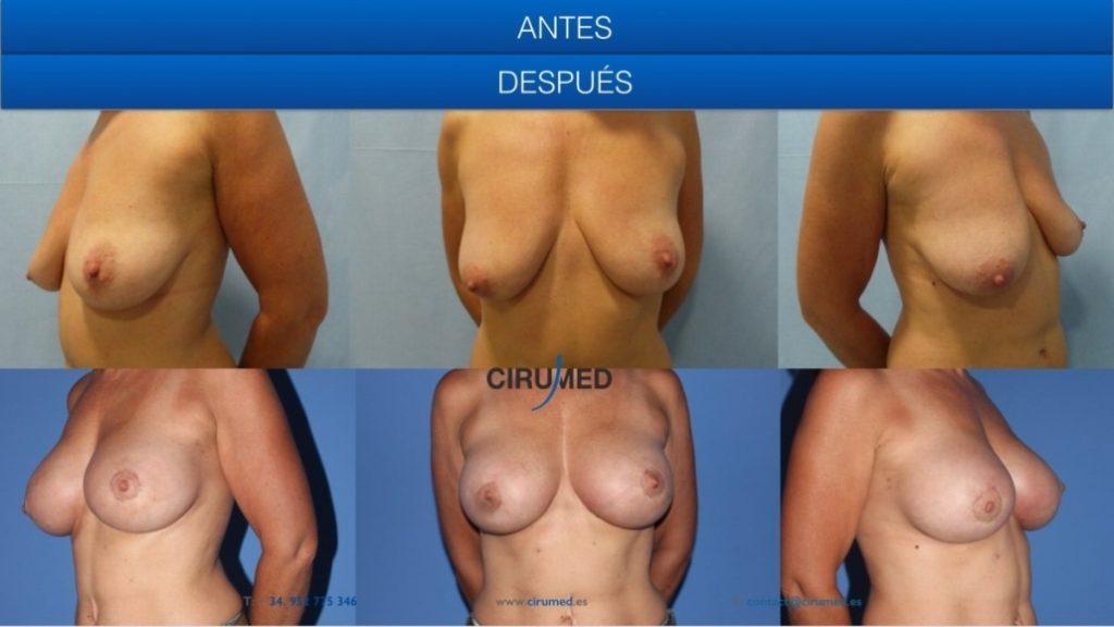 Implantes anatómicos en combinación con lipofilling y ajuste areolar