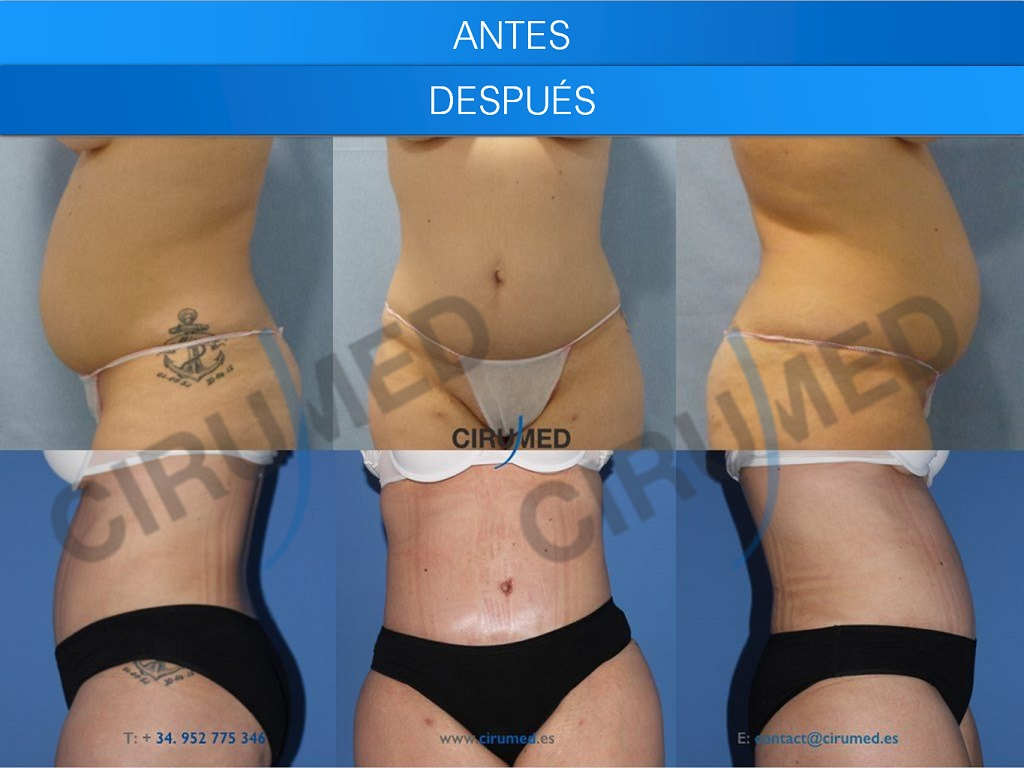 abdominoplasty-marbella-spain-liposuction