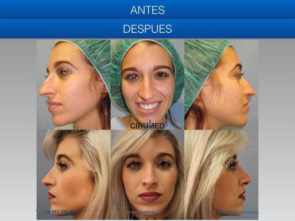 corrección del perfil de nariz rinoplastia cerrada