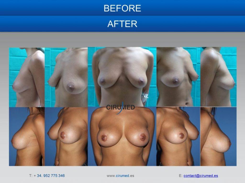 blog cirugia plastica